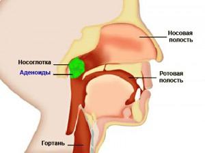 Удаление миндалин (аденотомия)
